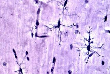 This shows microglia