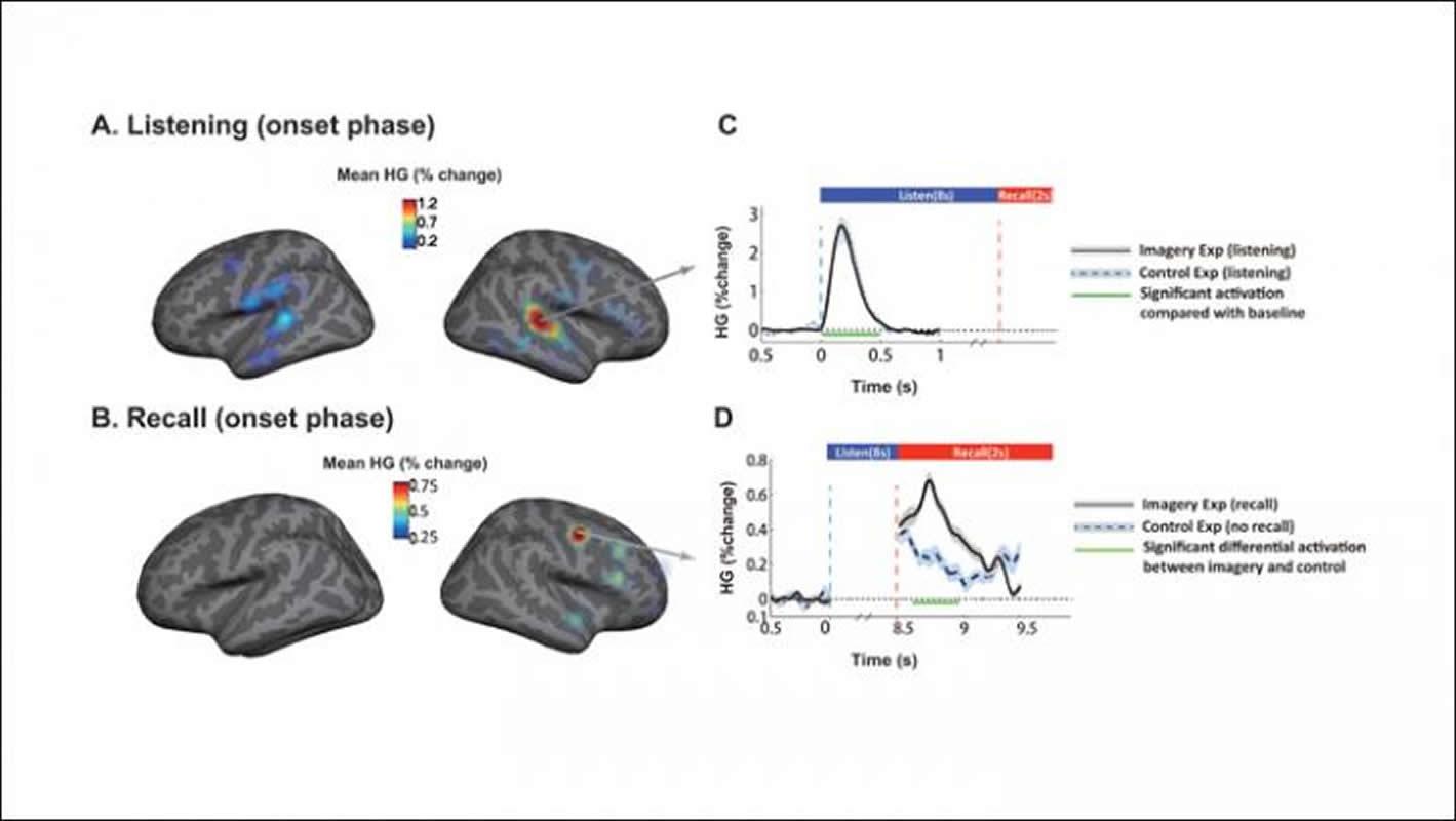 This shows how music flows through the brain