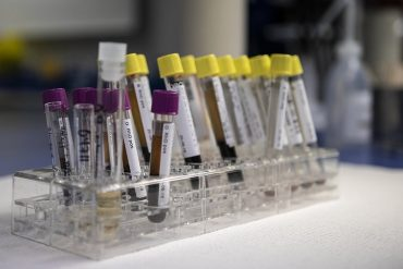 This shows vials in a lab