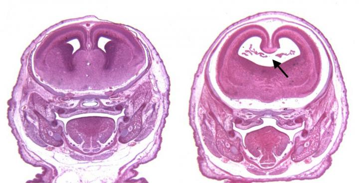 This shows fetal brain scans