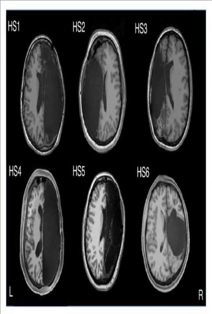 This shows the brain scans of a person who had a hemispherectomy