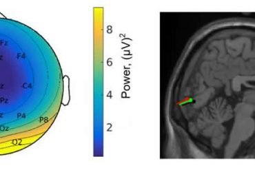 This shows the EEG read out and brain scan
