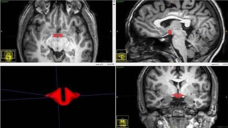 This shows the brain scans of the hypothalamus