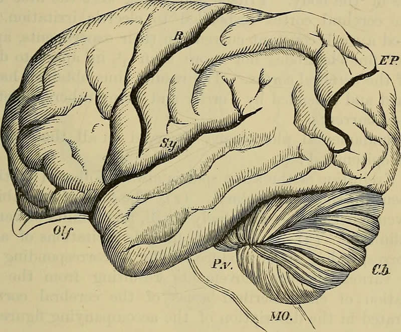 The image shows a brain