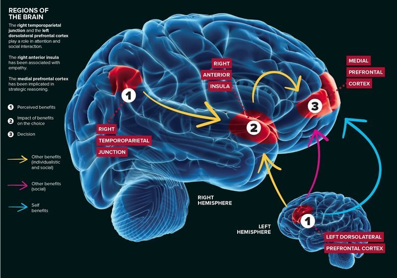 This shows a diagram of the brain