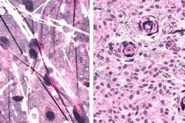 This shows brain tumor samples