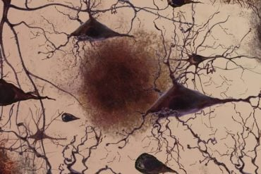 This shows amyloid in neurons