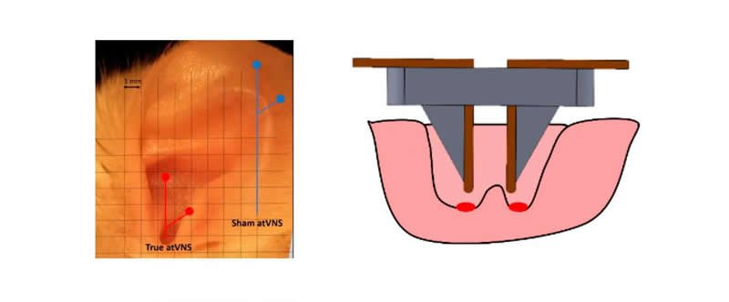 This is a diagram of an ear