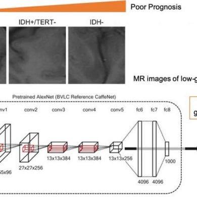 This shows how the CNN analyzes the MRI brain cancer data