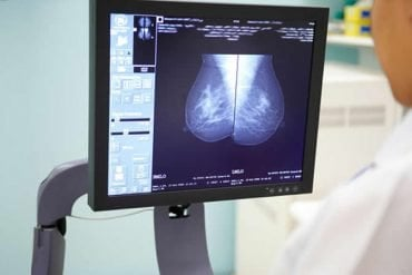 This shows a doctor looking at a breast cancer scan