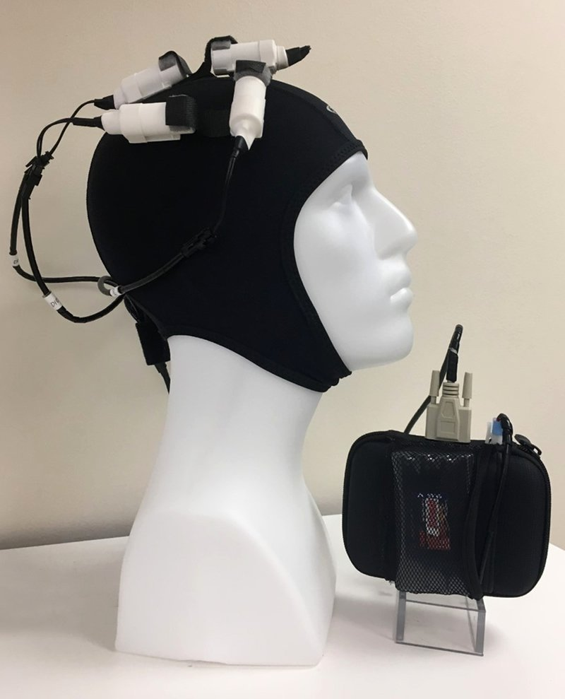 This shows the brain stimulation device