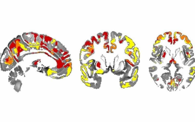 Iron in brain shows cognitive decline in people with Parkinson's - Neuroscience News