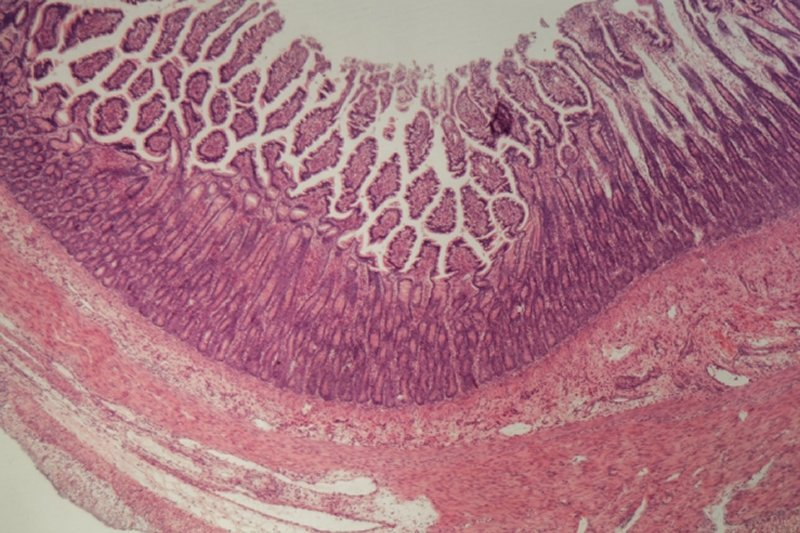 This shows gut tissue