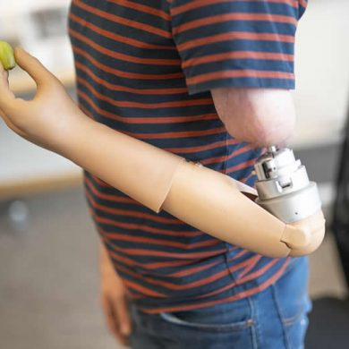 This shows a person with the neuroprosthetic arm