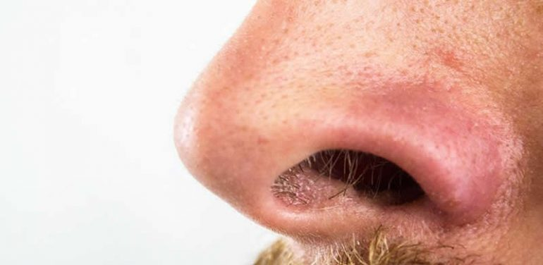 This shows a nose
