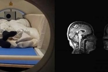 This shows the brain scans and the people cuddling in the mri
