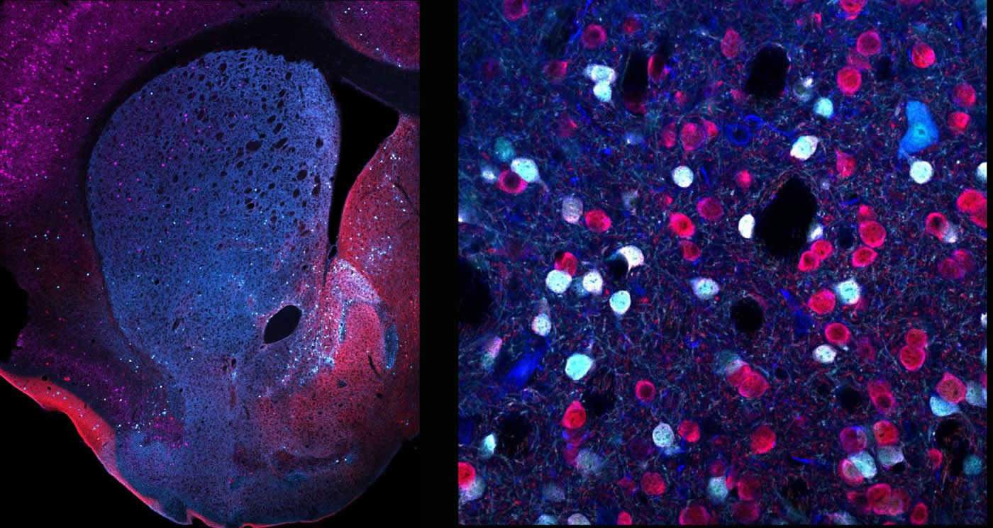 This shows different d2rs in the striatum