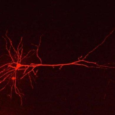 This shows a neuron
