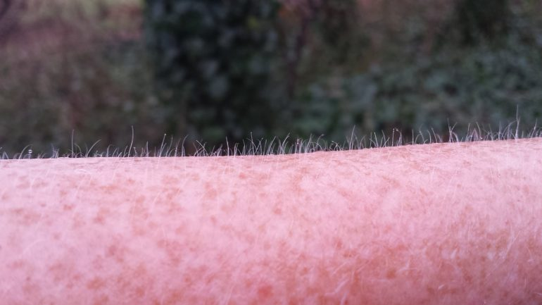 This shows goosebumps on a person's arm