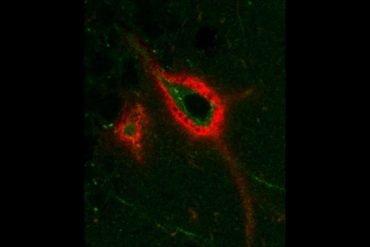 Tis shows a perineuronal net