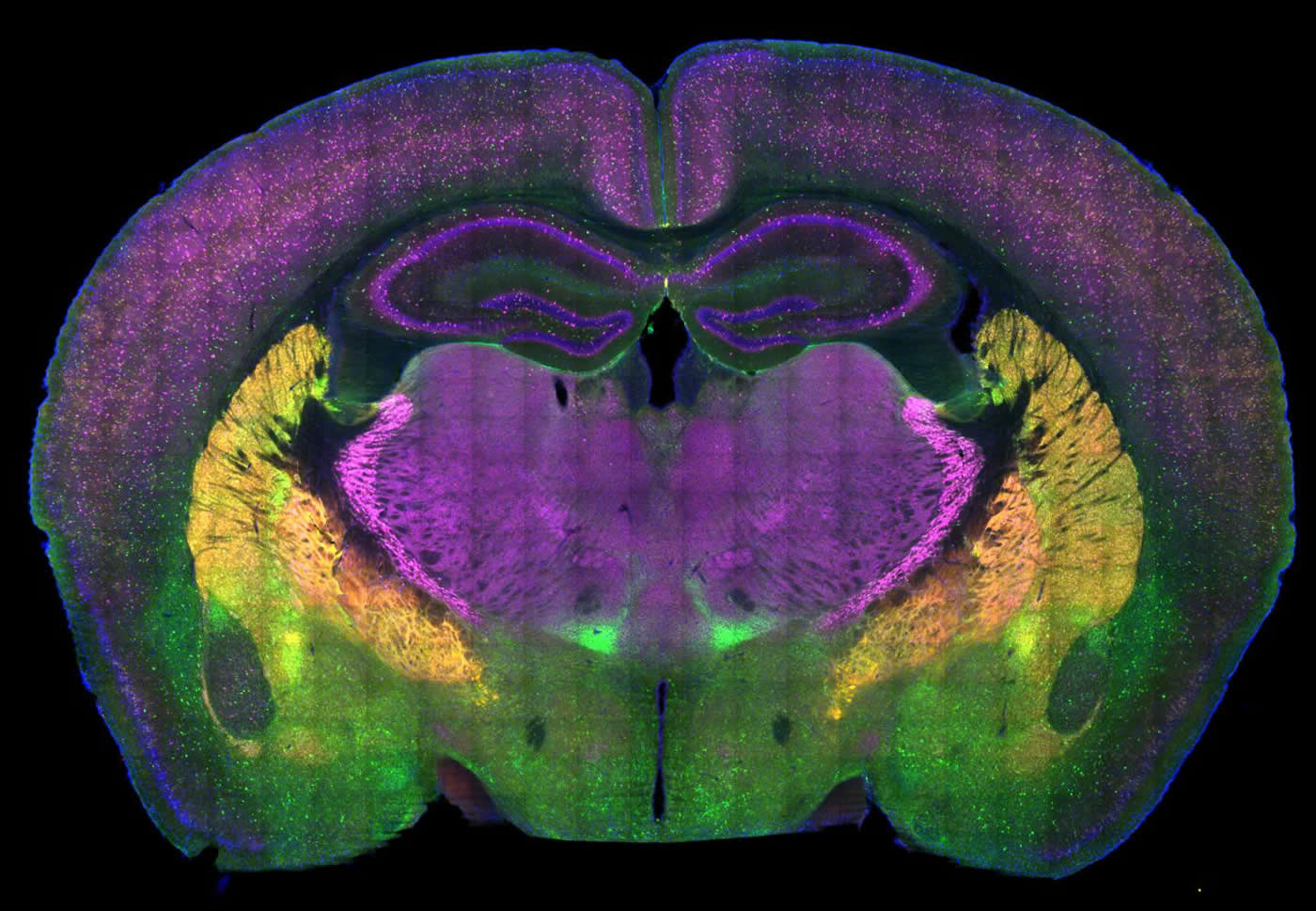 This shows a brain slice