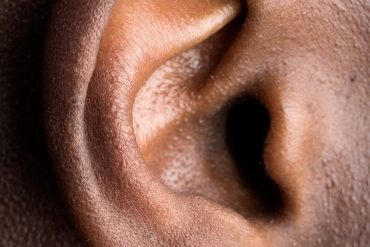 This shows an ear