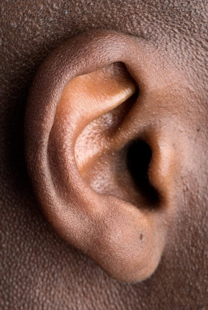 This shows an ear
