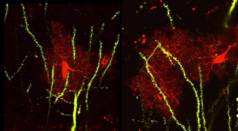 This shows neurons and astrocytes in the hippocampus