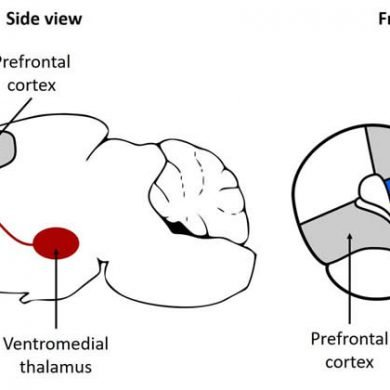 This shows the location of the ventromedia thalamus in a mouse brain