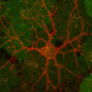 This shows dopamine in a neuron