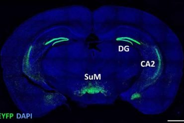 This shows the location of the sum in the brain