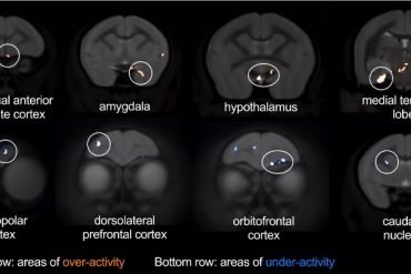 This shows the different brain regions in a brain scan