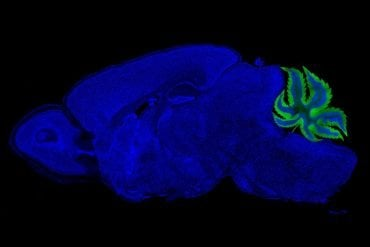 The cerrebellum in this brain image is replaces with a cannabis leaf