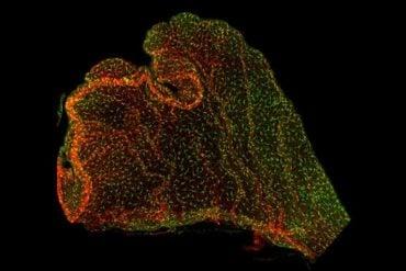 This shows immune cells in the choroid plexus