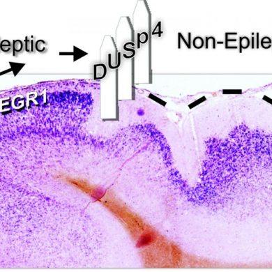This shows brain tissue