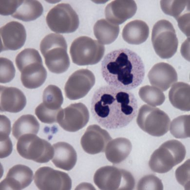 This shows blood cells