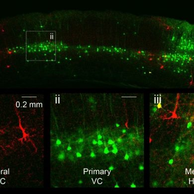 This shows ACC neurons