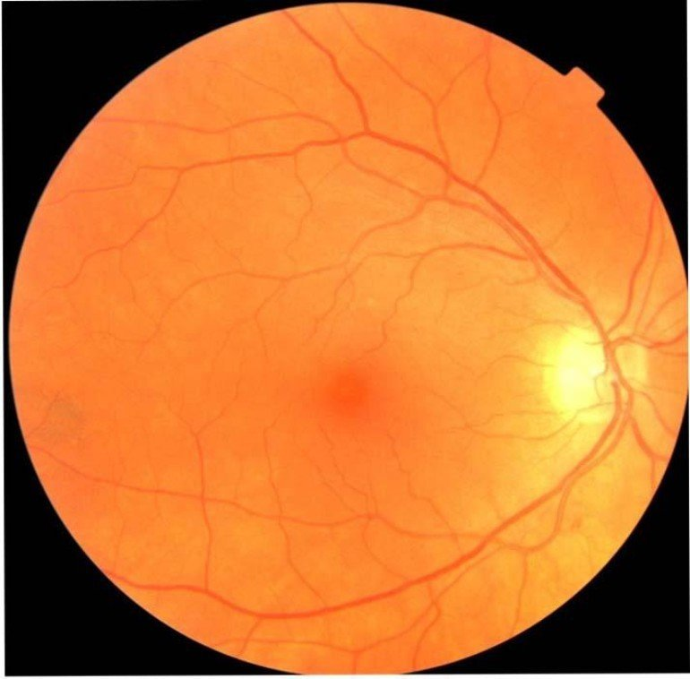 This shows a still of an eye