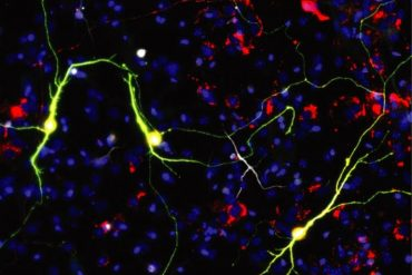 This shows the mitochondrial reprogrammed neurons