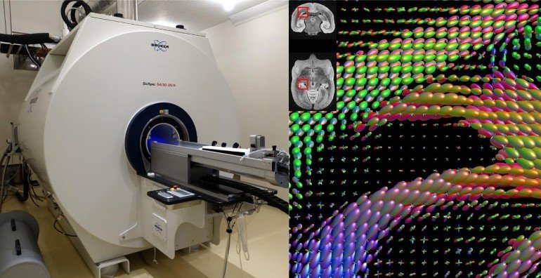 This shows an MRI machine and an AI readout image