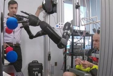 This shows the patient controlling the limbs with the bci