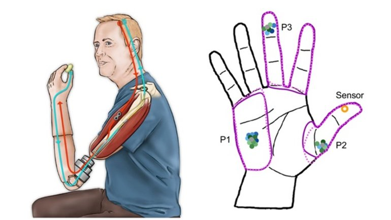 This shows a diagram of a hand and a man with a bionic arm