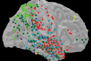 This shows the activity in different areas of the brain