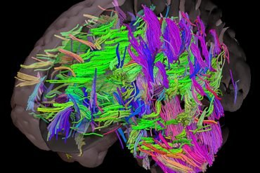 This shows the white tracts in the brain on a brain model