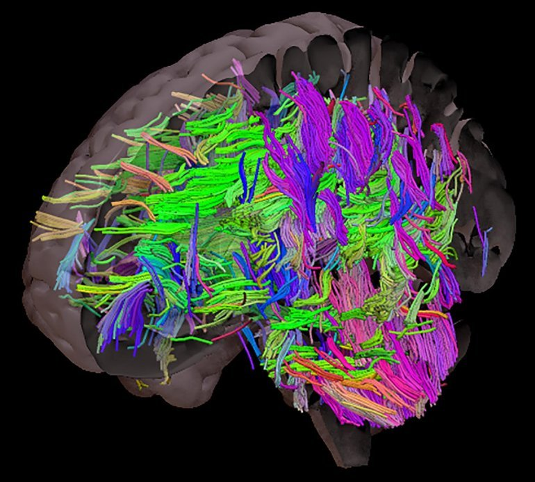 This shows a brain map with white matter tracts colored in bright colors