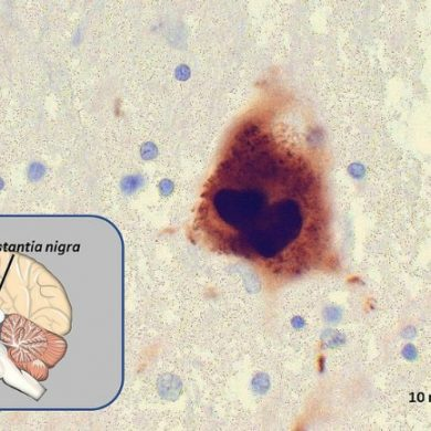 This shows a brain slice of a patient with PD