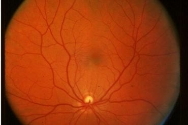 This shows a retinal scan