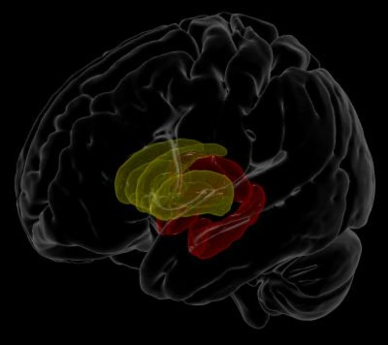 This is an image of the brain from the study