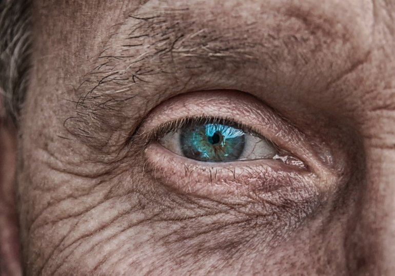 This shows a blue-green eye of an older man