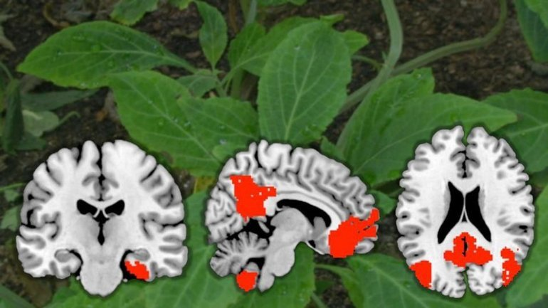 This shows plant leaves and brain scans from the study